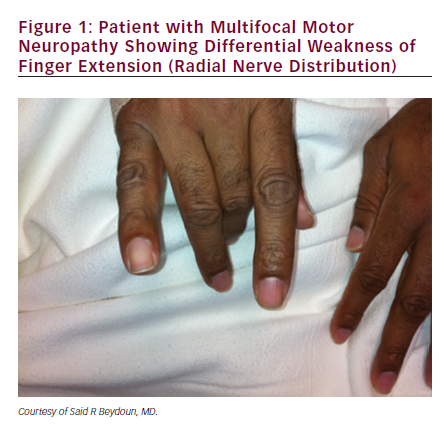 MMN usually presents with pure motor symptoms only, and that while it is unlikely to be misdiagnosed as EN by an experienced neurologist or neuromuscular ...