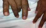 Differentiating Multifocal Motor Neuropathy from Entrapment Neuropathy—A Diagnostic Challenge