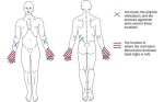 >Pain and Sensory Abnormalities in Parkinson's Disease— An Age- and Gender-matched Controlled Pilot Study